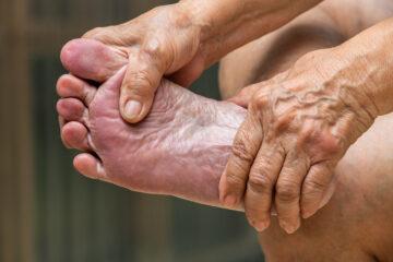 Som diabetiker skal man passe godt på sine fødder